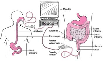 What are the types of endoscopy
